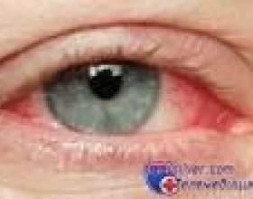 Почервоніння очей від лінз фото
